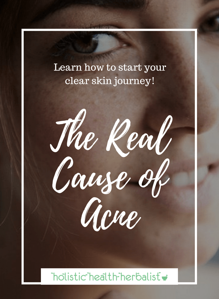 The Real Cause of Acne - Learn about the root cause of acne and how you can get clear skin naturally.