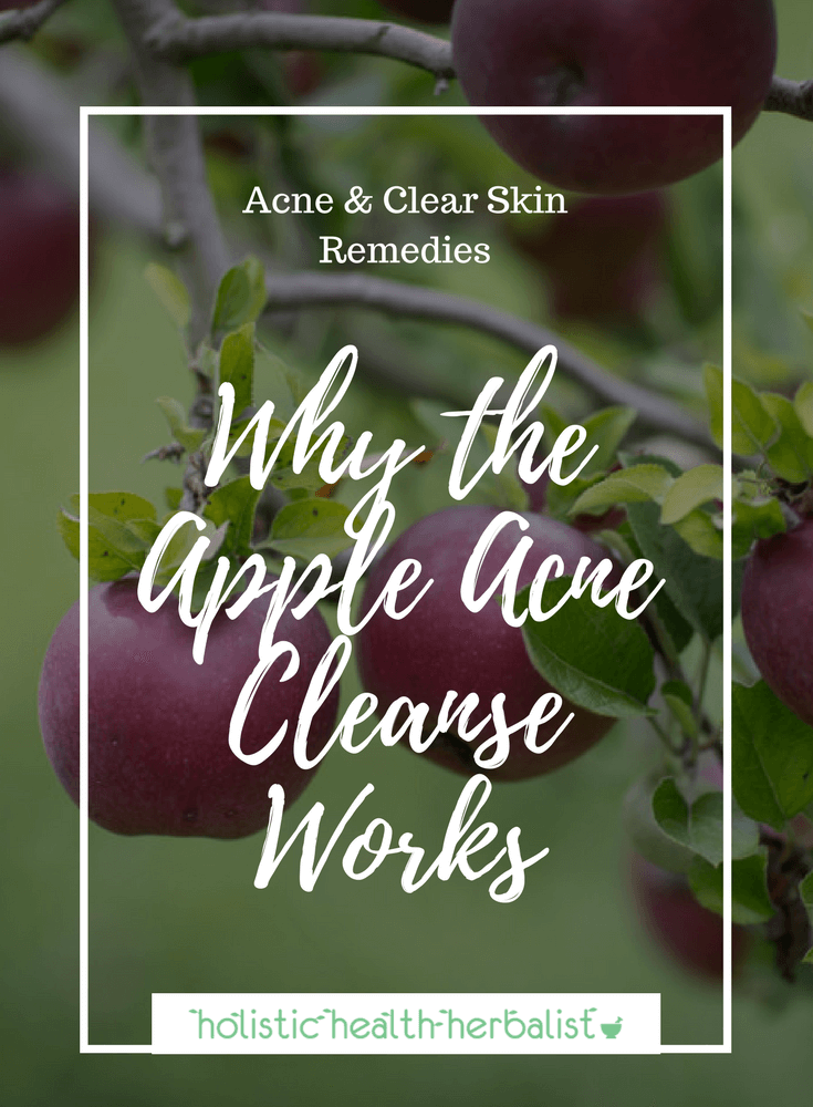 Why the Apple Acne Cleanse Works - Learn why this unconventional cleanse works so well for clearing acne, sometimes in as little as three days!