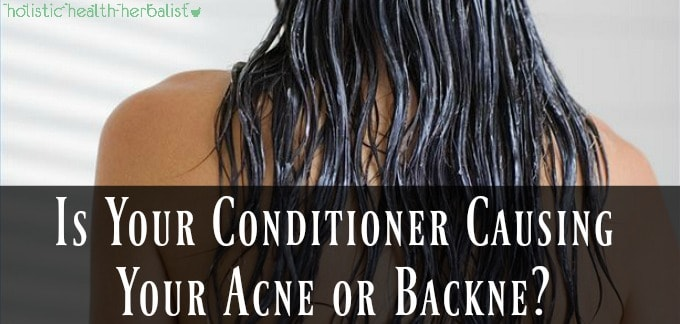 Is Your Conditioner Causing Your Acne or Backne?