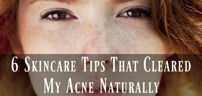 6 Skincare Tips That Cleared My Acne Naturally - Holistic