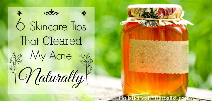 clear acne naturally