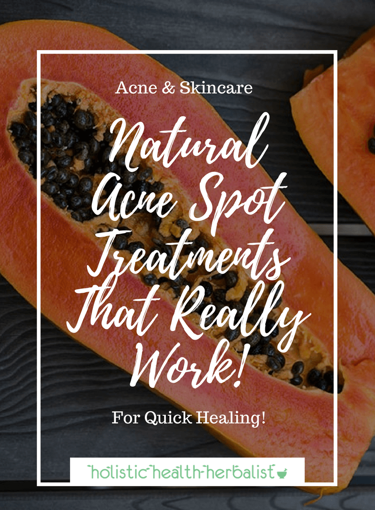 Natural Acne Spot Treatments That Really Work! - Learn about some of my favorite spot treatments that are inexpensive, quick to make, and effective at drawing out impurities and drying up blemishes.