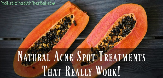 Natural Acne Spot Treatments That Really Work!