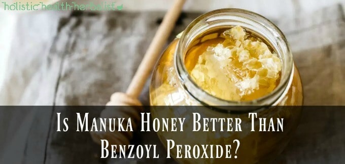 Is Manuka Honey Better Than Benzoyl Peroxide?