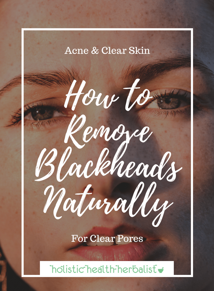 How to Remove Blackheads Naturally - Popping blackheads should be your last resort. Learn how to get rid of blackheads naturally using simple ingredients.