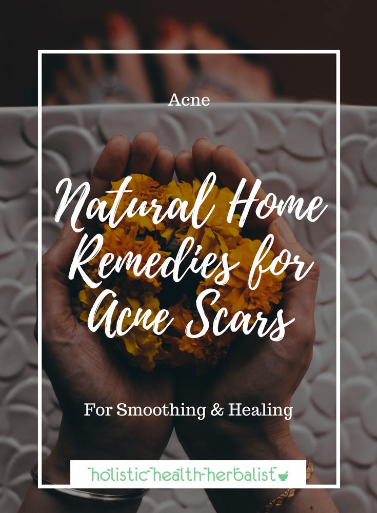 Natural Home Remedies for Acne Scars - Learn about my top remedies for smoothing out and lightening acne scars.