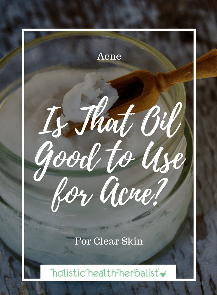 Is That Oil Good to Use for Acne? - Find out the comedogenic ratings of the most popular oils used for acne prone skin.