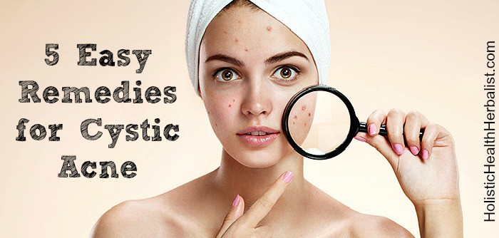Cystic acne remedies.