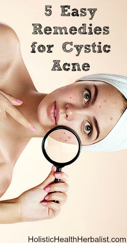 5 Easy Remedies for Cystic Acne - Learn how to shrink and heal deep cystic acne breakouts with these simple remedies.