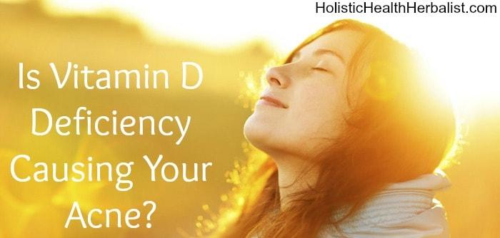 bd934b55d49b Is Vitamin D Deficiency Causing Your Acne? - Holistic Health Herbalist
