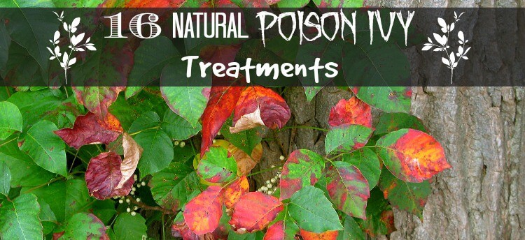 natural poison ivy treatments