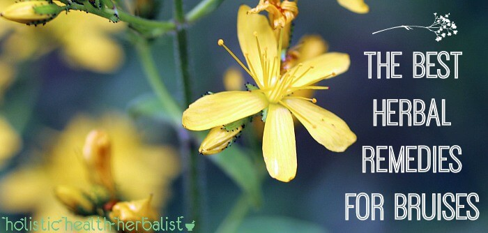 The Best Herbal Remedies for Bruises