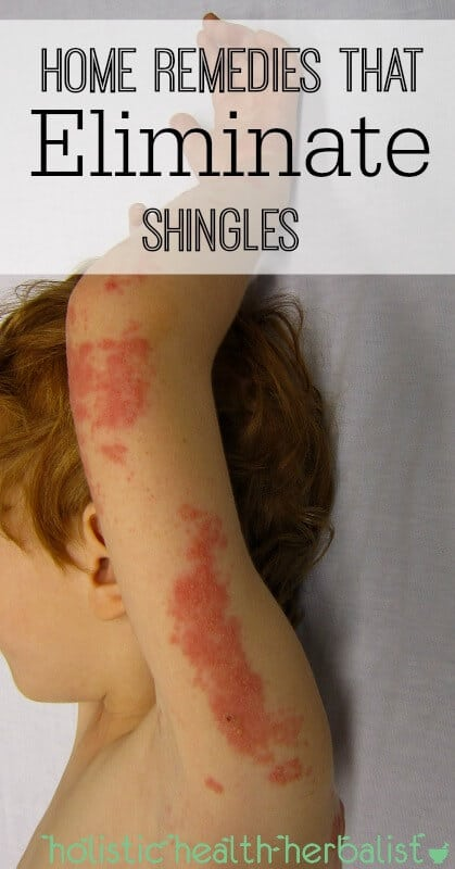 Home Remedies That Eliminate Shingles - Shingles can be a debilitating and painful condition caused by the varicella-zoster virus (the same virus that causes the chicken pox). Learn about the best home remedies to help ease symptoms and help you recover faster.
