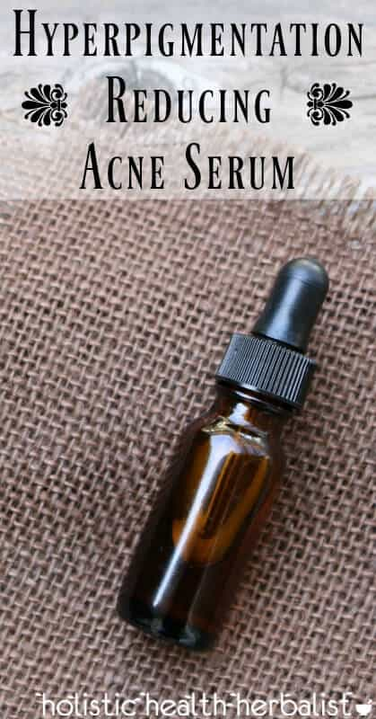 Hyperpigmentation Reducing Acne Serum - Reduce dark spots naturally using essential oils.