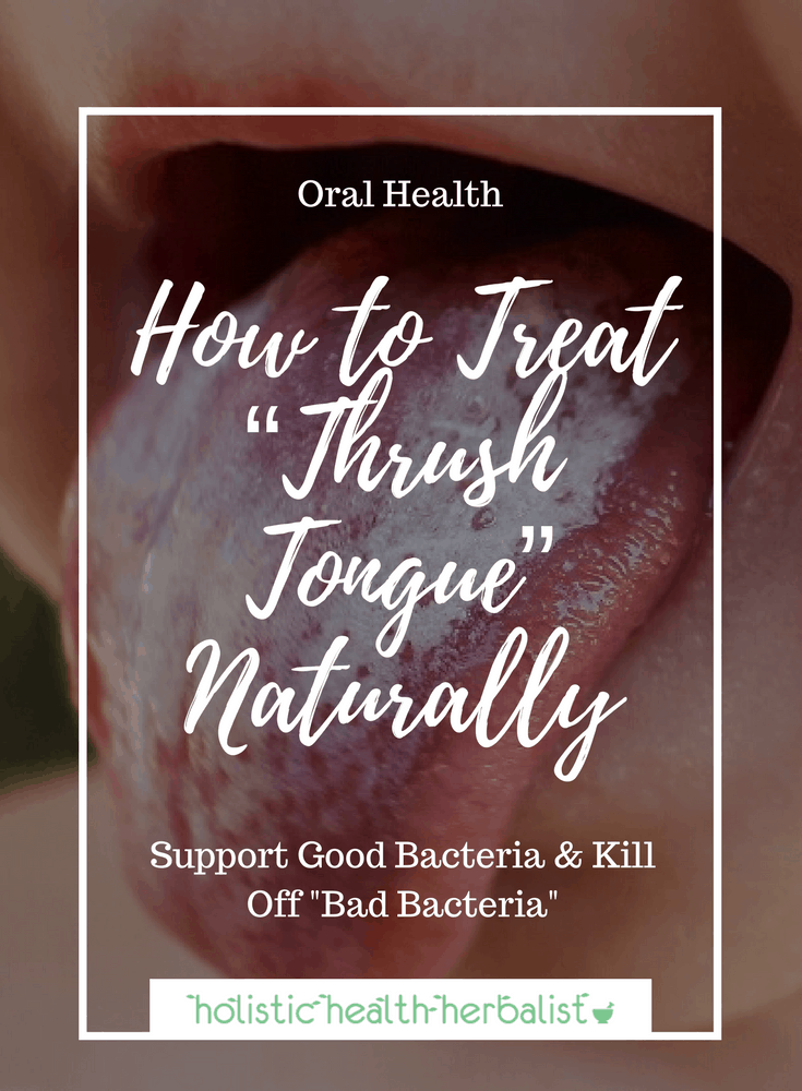 "How to Treat ""Thrush Tongue"" Naturally - Learn how to use natural remedies to treat oral thrush and rebalance good bacteria in the mouth and digestive tract."